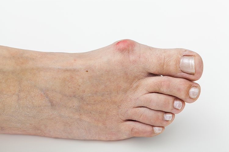 Bunion Surgery at Active Podiatry